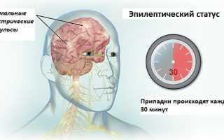 Эпистилис (Epistylis), гетерополярия (Heteropolaria), эпистилиоз – диагностика и лечение.